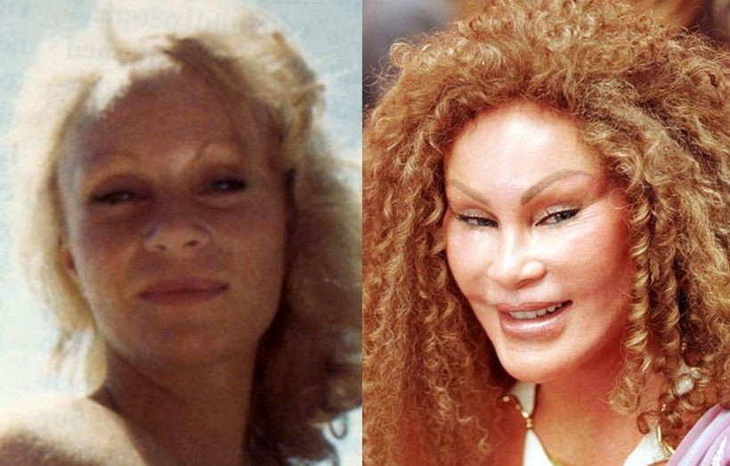 Jocelyn Wildenstein Before And After Plastic Surgery 01