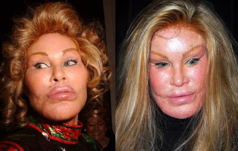 Jocelyn Wildenstein Before And After Plastic Surgery 02