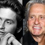 Michael Douglas before and after plastic surgery (24)