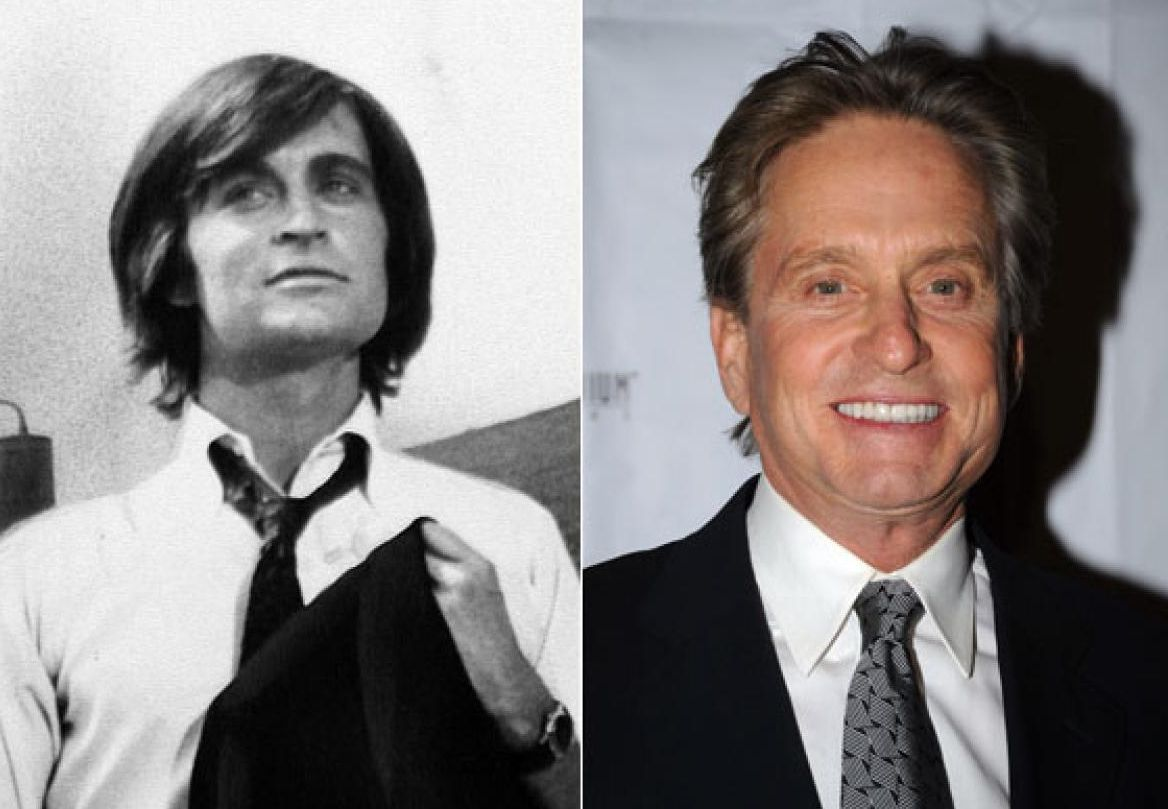 Michael Douglas before and after plastic surgery