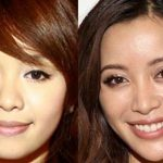 Michelle Phan before and after plastic surgery (9)