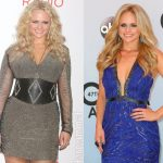 Miranda Lambert before and after plastic surgery (1)