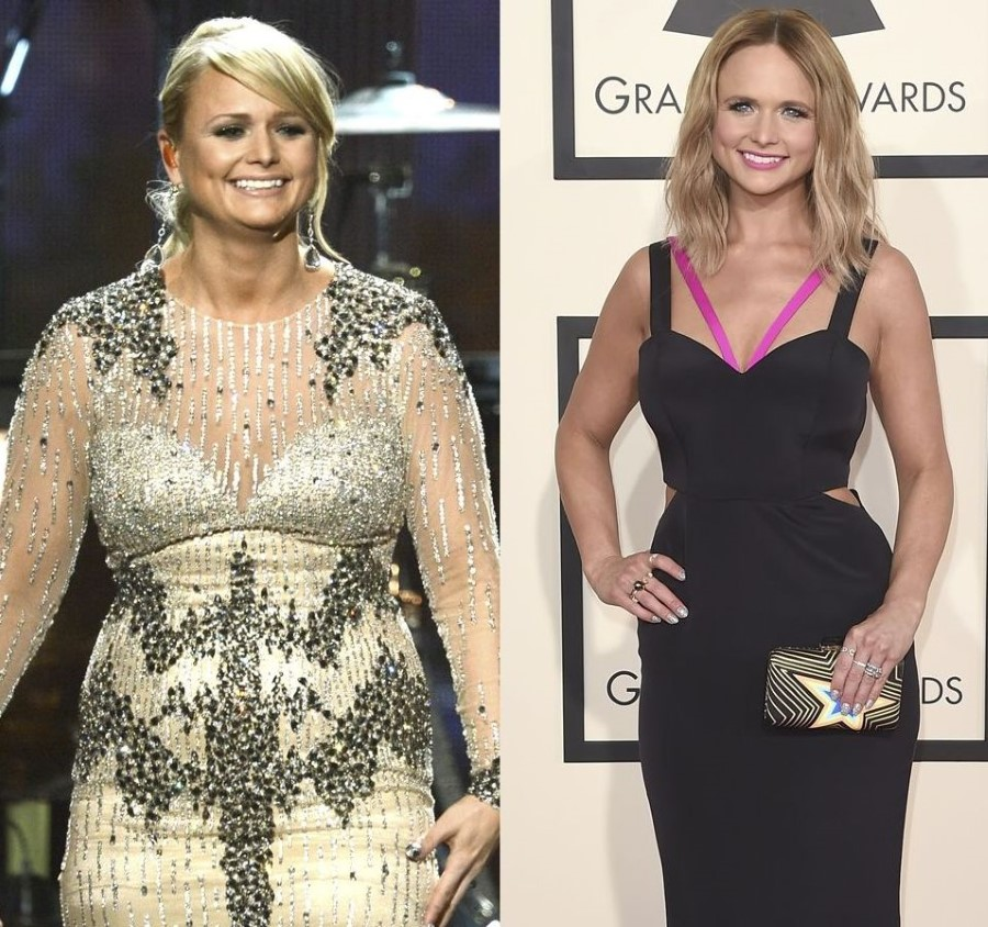 Miranda Lambert before and after plastic surgery
