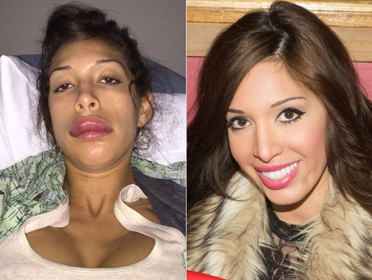 Farrah Abraham before and after plastic surgery